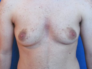 FTM top surgery before