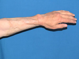 forearm donor site