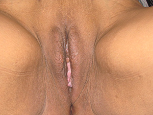 1 stage vaginoplasty